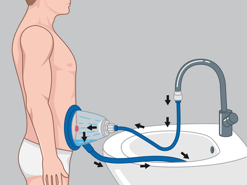 Stomydo® can be connected to any tap