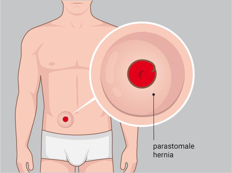 Illustratie paratomale hernia problemen oplossen met de Stomydo Stomadouche