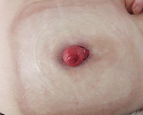 Huidproblemen rond de stoma verholpen door stomydo