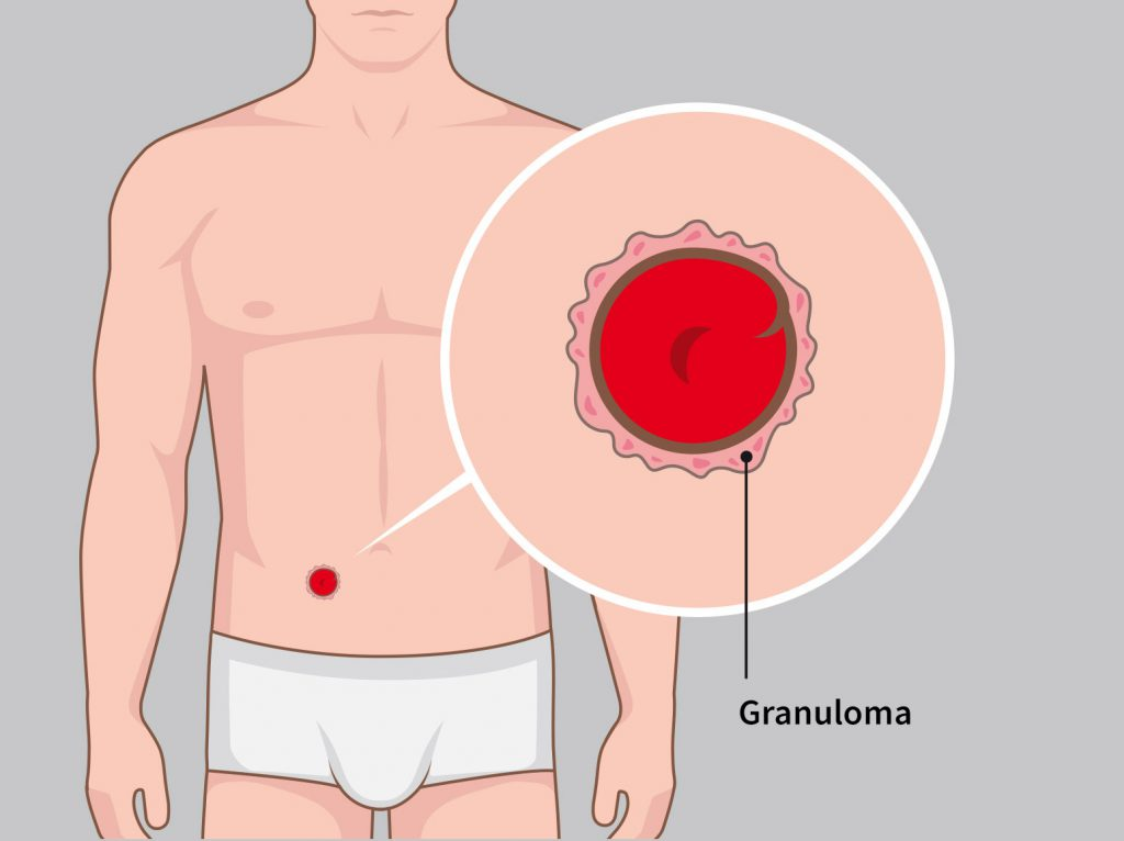 Illustration granuloma Stomydo ostomy shower