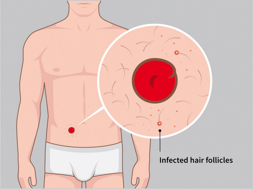 Illustration infected hair follicles Stomydo ostomy shower
