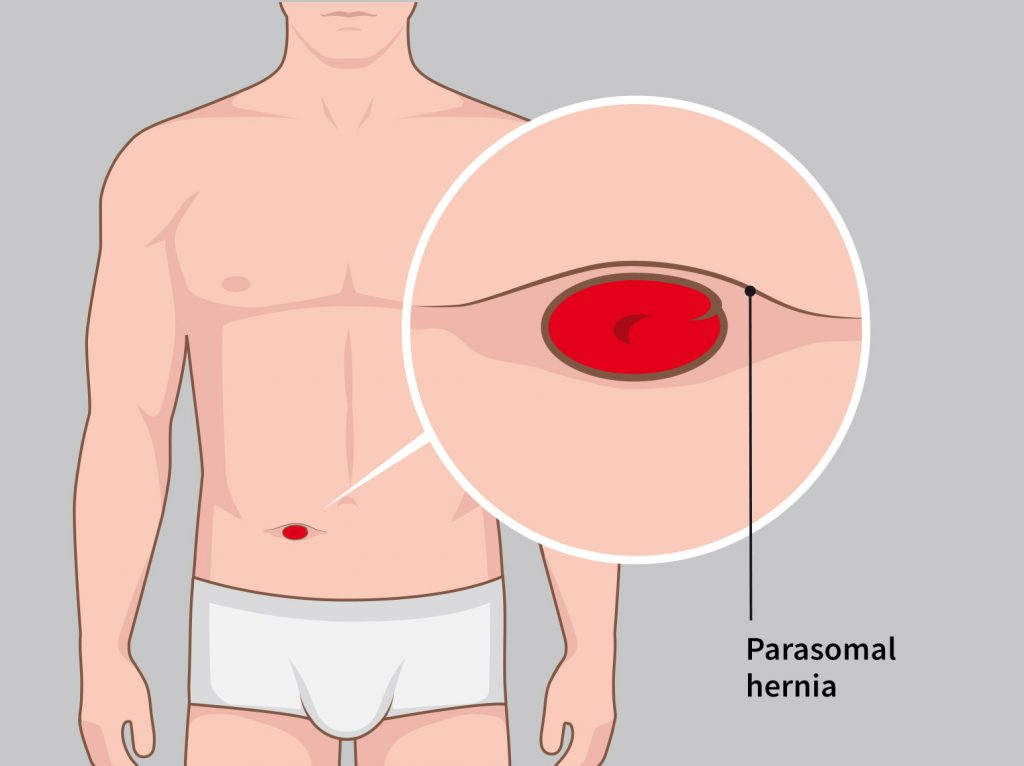 Illustration parastomal hernia Stomydo ostomy shower