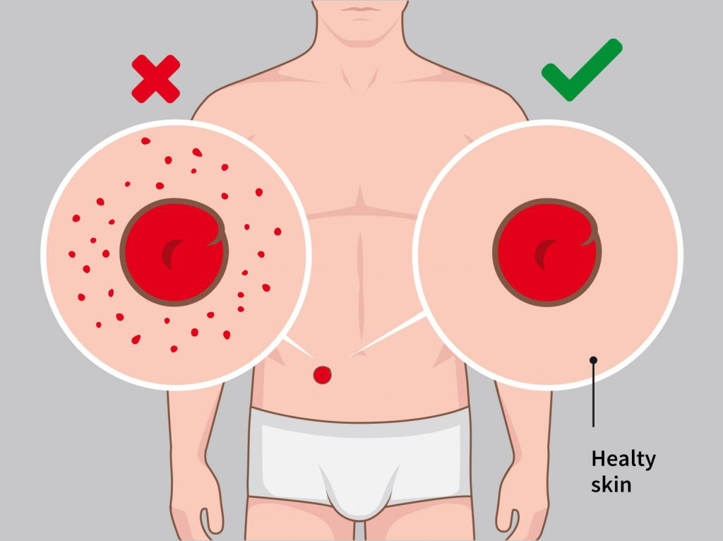Illustration stoma reversal Stomydo ostomy shower